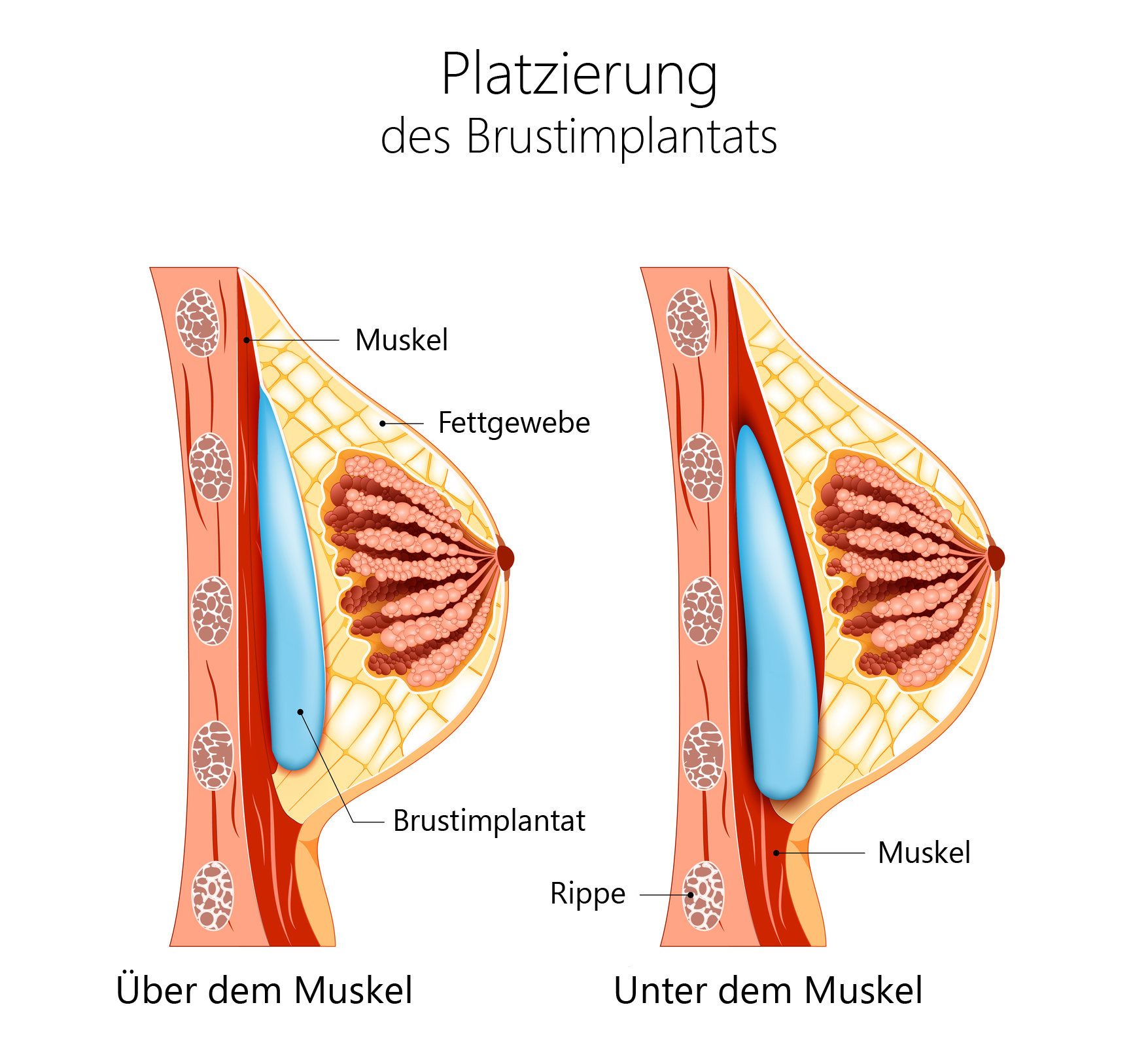 Brustimplantat, Brustvergroesserung, Silikonimplantat, Unterbrustmuskel, Ueberbrustmuskel